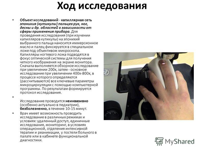 Ход исследования Объект исследований - капиллярная сеть эпонихия (кутикулы) пальцев рук, ног, десны и др. областей в зависимости от сферы применения прибора. Для проведения исследования (при изучении капилляров кутикулы) на эпонихий выбранного пальца