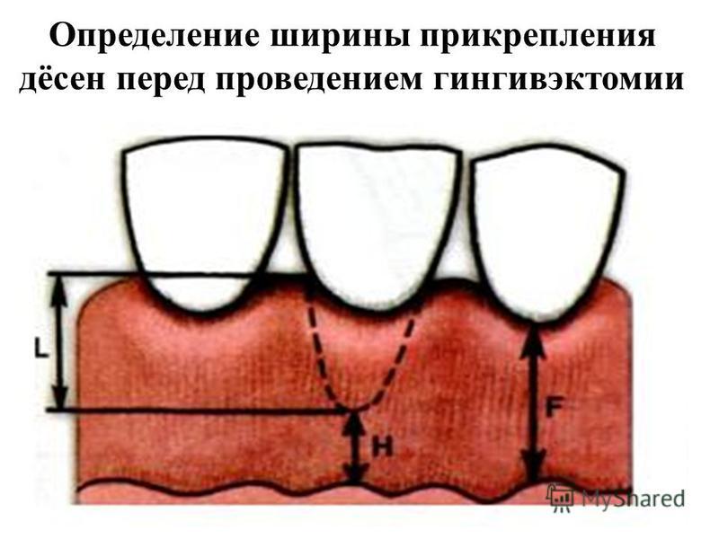 Определение ширины прикрепления дёсен перед проведением гингивэктомии