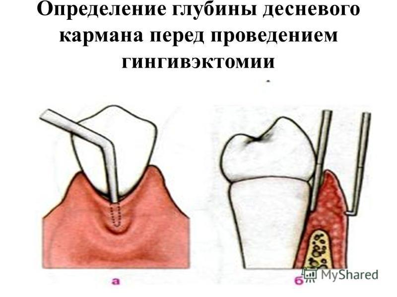 Определение глубины десневого кармана перед проведением гингивэктомии