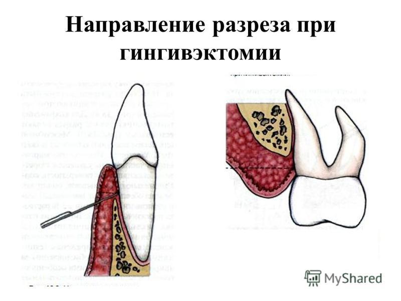 Направление разреза при гингивэктомии