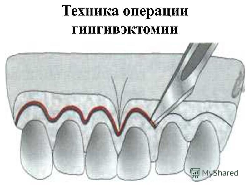 Техника операции гингивэктомии