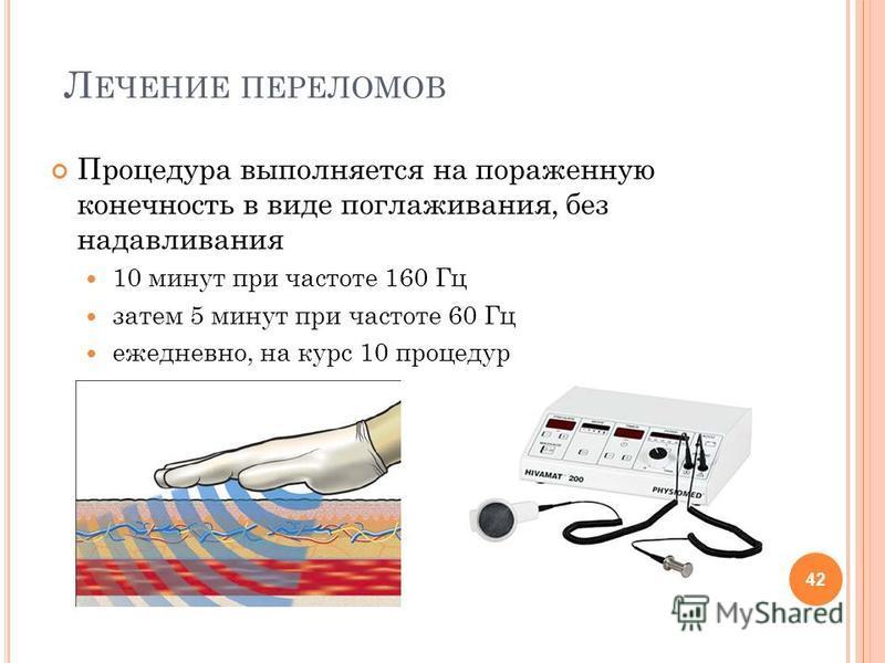 Л ЕЧЕНИЕ ПЕРЕЛОМОВ Процедура выполняется на пораженную конечность в виде поглаживания, без надавливания 10 минут при частоте 160 Гц затем 5 минут при частоте 60 Гц ежедневно, на курс 10 процедур 42