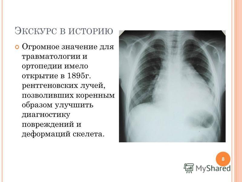 Э КСКУРС В ИСТОРИЮ Огромное значение для травматологии и ортопедии имело открытие в 1895 г. рентгеновских лучей, позволивших коренным образом улучшить диагностику повреждений и деформаций скелета. 8