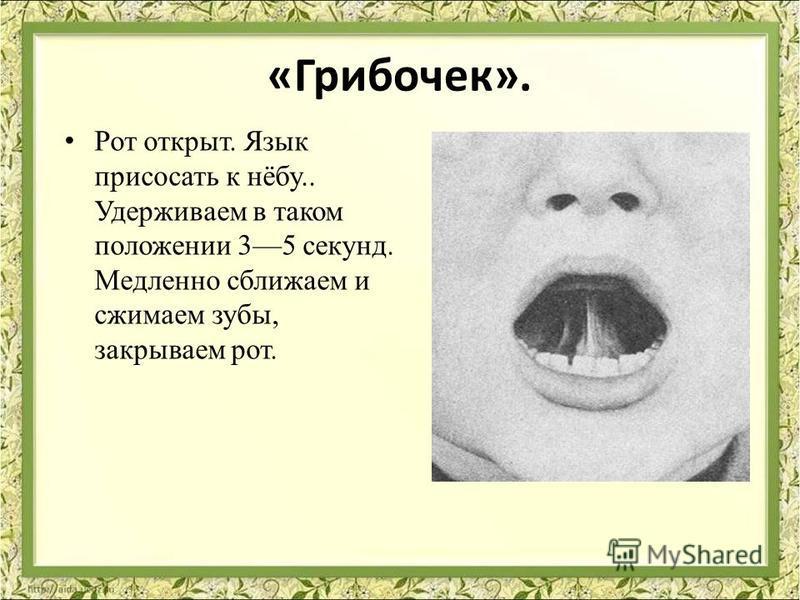 «Грибочек». Рот открыт. Язык присосать к нёбу.. Удерживаем в таком положении 35 секунд. Медленно сближаем и сжимаем зубы, закрываем рот.