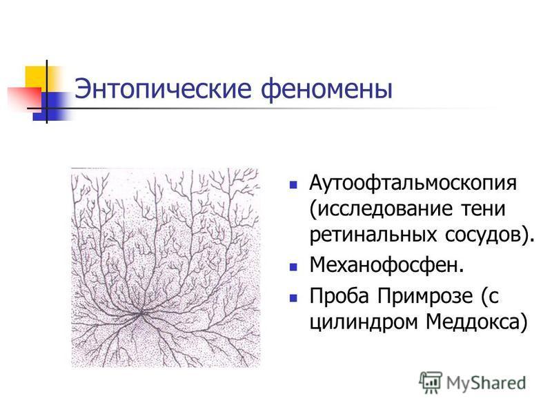 Энтопические феномены Аутоофтальмоскопия (исследование тени ретинальных сосудов). Механофосфен. Проба Примрозе (с цилиндром Меддокса)