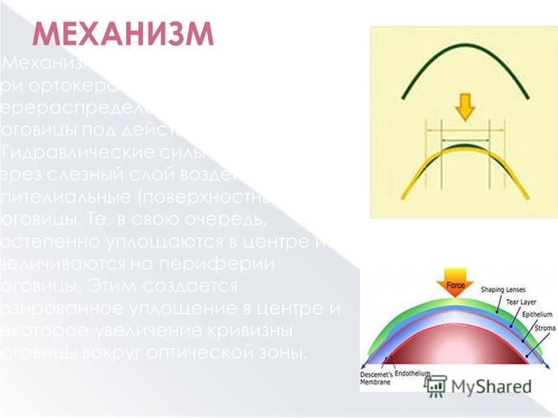 МЕХАНИЗМ Механизм исправления близорукости при ортокератологии - это перераспределение клеток эпителия роговицы под действием ОК-линзы. Гидравлические силы под линзой через слезный слой воздействуют на эпителиальные (поверхностные) клетки роговицы. Т