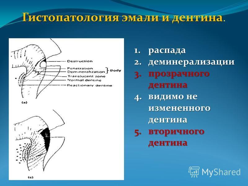 Гистопатология эмали и дентина Гистопатология эмали и дентина. 1. распада 2. деминерализации 3. прозрачного дентина 4. видимо не измененного дентина 5. вторичного дентина