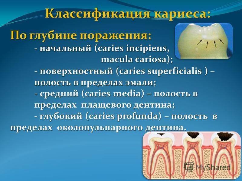 Классификация кариеса: По глубине поражения: - начальный (caries incipiens, macula cariosa); macula cariosa); - поверхностный (caries superficialis ) – полость в пределах эмали; - средний (caries media) – полость в пределах плащевого дентина; - глубо