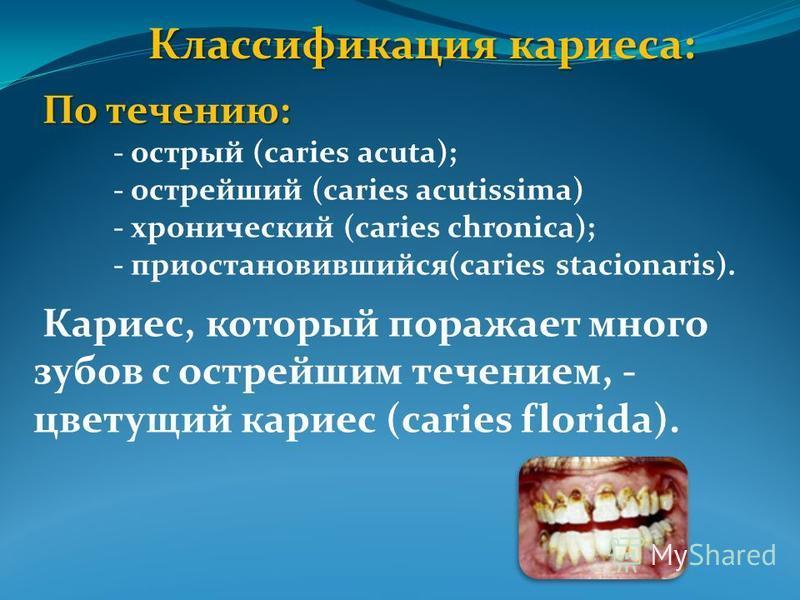 Классификация кариеса: По течению: - острый (caries acuta); - острейший (caries acutissima) - хронический (caries chronica); - приостановившийся(caries stacionaris). Кариес, который поражает много зубов с острейшим течением, - цветущий кариес (caries