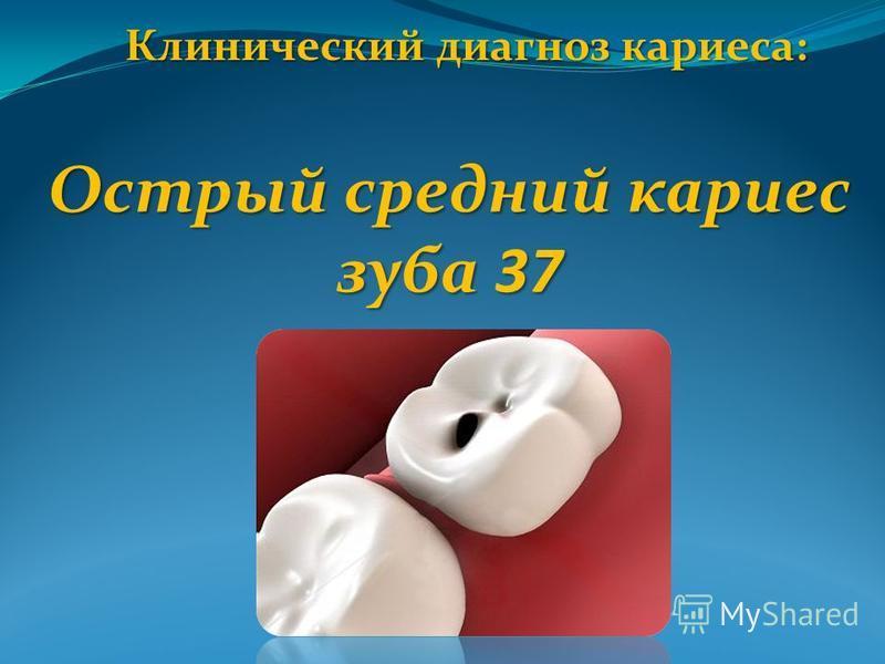Клинический диагноз кариеса: Острый средний кариес зуба 37