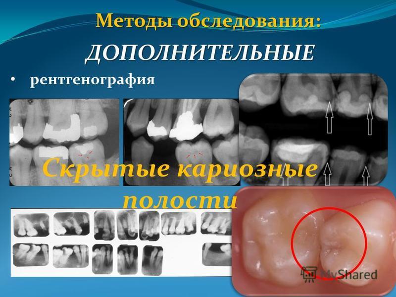 Методы обследования: ДОПОЛНИТЕЛЬНЫЕ рентгенография Скрытые кариозные полости