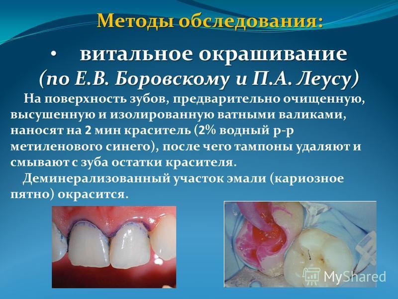 Методы обследования: витальное окрашивание витальное окрашивание (по Е.В. Боровскому и П.А. Леусу) На поверхность зубов, предварительно очищенную, высушенную и изолированную ватными валиками, наносят на 2 мин краситель (2% водный р-р метиленового син