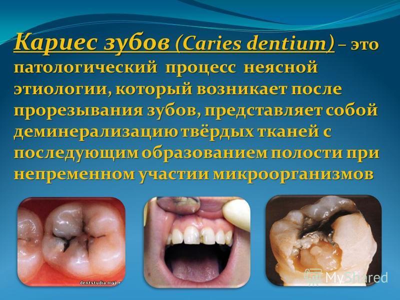 Кариес зубов (Caries dentium) – это патологический процесс неясной этиологии, который возникает после прорезывания зубов, представляет собой деминерализацию твёрдых тканей с последующим образованием полости при непременном участии микроорганизмов
