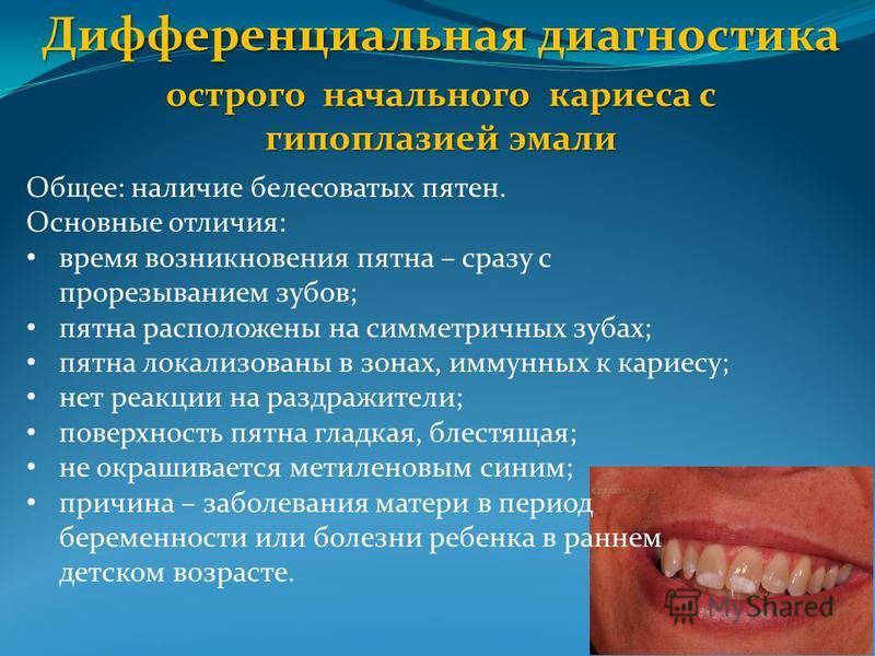 Дифференциальная диагностика острого начального кариеса с гипоплазией эмали Общее: наличие белесоватых пятен. Основные отличия: время возникновения пятна – сразу с прорезыванием зубов; пятна расположены на симметричных зубах; пятна локализованы в зон