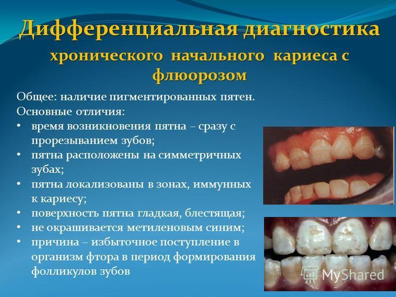 Дифференциальная диагностика хронического начального кариеса с флюорозом Общее: наличие пигментированных пятен. Основные отличия: время возникновения пятна – сразу с прорезыванием зубов; пятна расположены на симметричных зубах; пятна локализованы в з