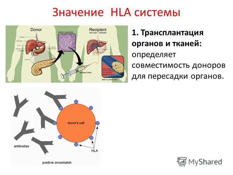 Значение HLA системы 1. Трансплантация органов и тканей: определяет совместимость доноров для пересадки органов.