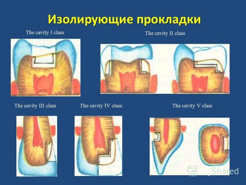 Изолирующие прокладки The cavity I class The cavity II class The cavity III classThe cavity IV classThe cavity V class