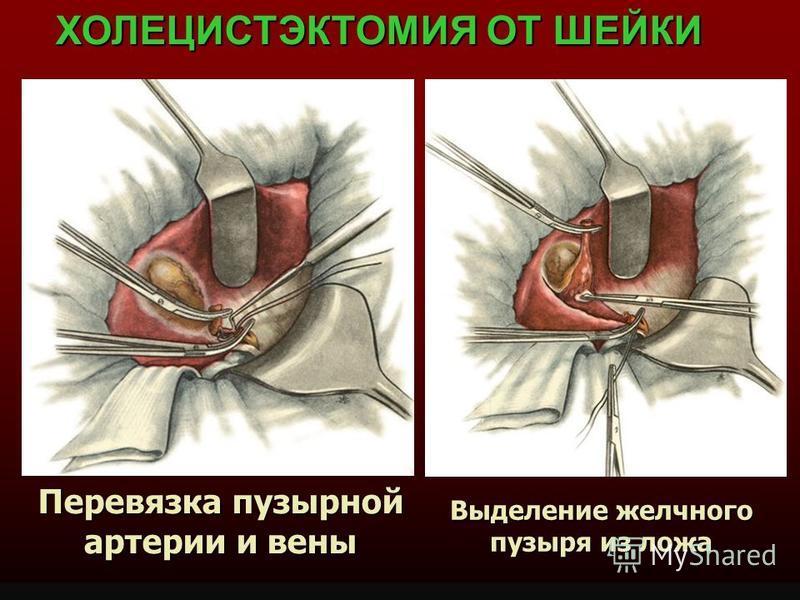 Перевязка пузырной артерии и вены ХОЛЕЦИСТЭКТОМИЯ ОТ ШЕЙКИ Выделение желчного пузыря из ложа