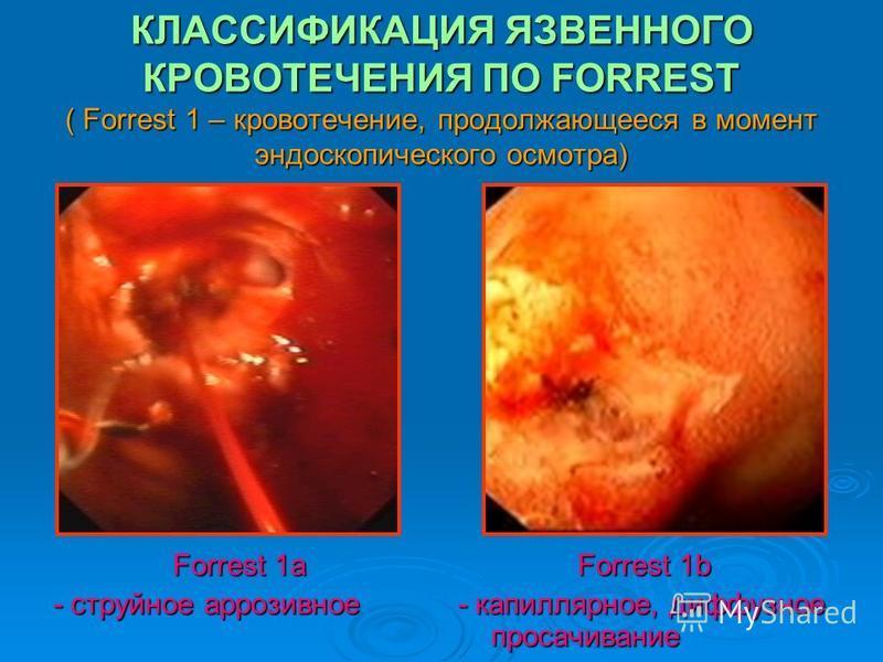 КЛАССИФИКАЦИЯ ЯЗВЕННОГО КРОВОТЕЧЕНИЯ ПО FORREST ( Forrest 1 – кровотечение, продолжающееся в момент эндоскопического осмотра) Forrest 1a - струйное аррозивное Forrest 1b - капиллярное, диффузное просачивание