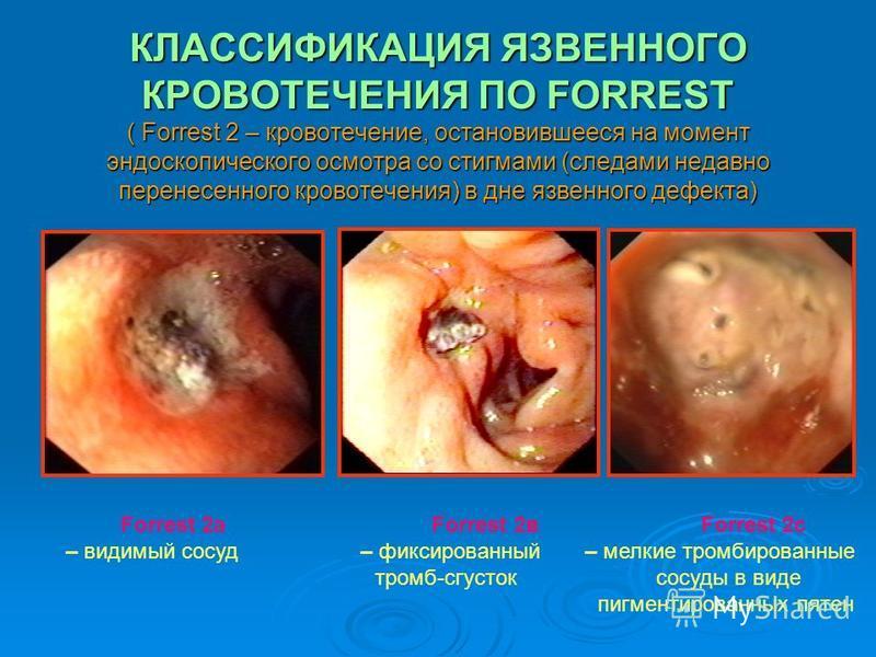 КЛАССИФИКАЦИЯ ЯЗВЕННОГО КРОВОТЕЧЕНИЯ ПО FORREST ( Forrest 2 – кровотечение, остановившееся на момент эндоскопического осмотра со стигмами (следами недавно перенесенного кровотечения) в дне язвенного дефекта) Forrest 2 а Forrest 2 в Forrest 2 с – види