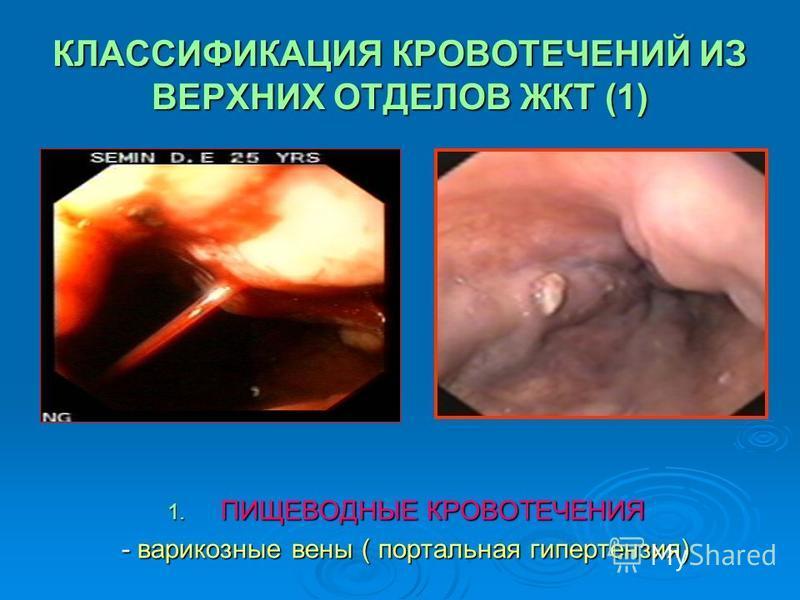 КЛАССИФИКАЦИЯ КРОВОТЕЧЕНИЙ ИЗ ВЕРХНИХ ОТДЕЛОВ ЖКТ (1) 1. ПИЩЕВОДНЫЕ КРОВОТЕЧЕНИЯ - варикозные вены ( портальная гипертензия)
