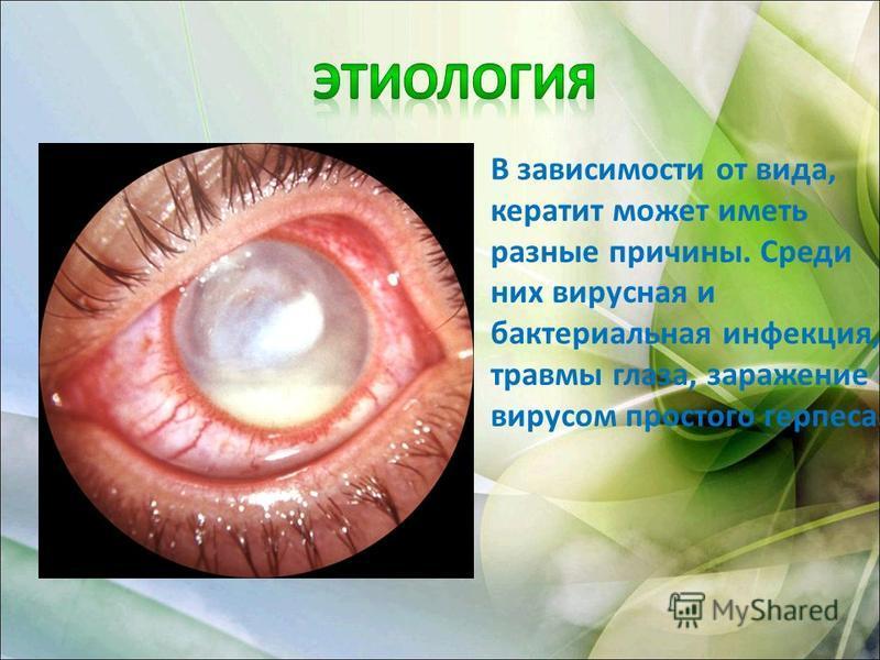 В зависимости от вида, кератит может иметь разные причины. Среди них вирусная и бактериальная инфекция, травмы глаза, заражение вирусом простого герпеса.