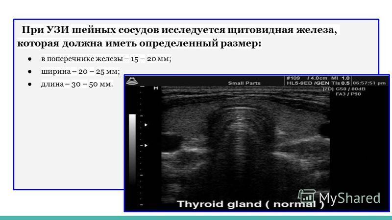 При УЗИ шейных сосудов исследуется щитовидная железа, которая должна иметь определенный размер: в поперечнике железы – 15 – 20 мм; ширина – 20 – 25 мм; длина – 30 – 50 мм.