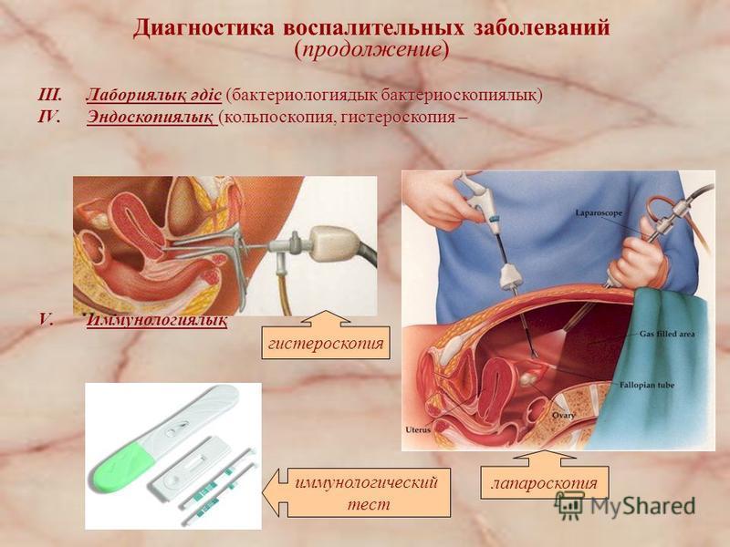 III.Лабориялық әдіс (бактериологиядық бактериоскопиялық) IV.Эндоскопиялық (кольпоскопия, гистероскопия – V.Иммунологиялық Диагностика воспалительных заболеваний (продолжении) гистероскопия иммунологический тест лапароскопия