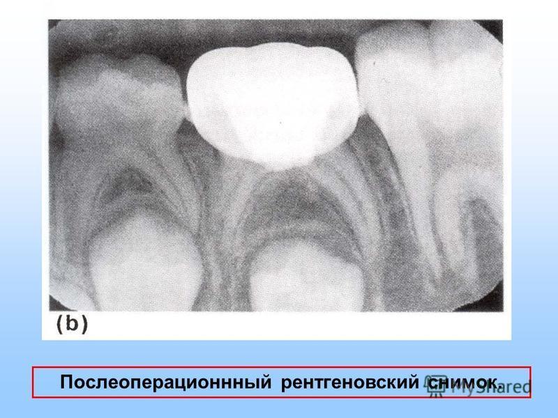 Послеоперационнный рентгеновский снимок.