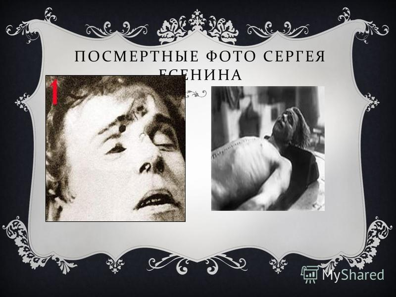 ПОСМЕРТНАЯ МАСКА СЕРГЕЯ ЕСЕНИНА Посмертная маска Есенина. Вмятына от удара на лбу у переносицы явно заметна