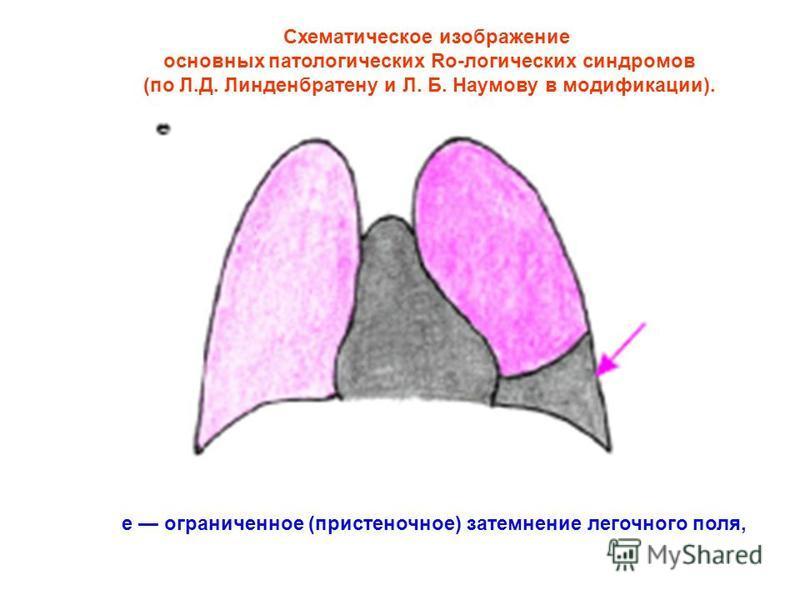 Схематическое изображение основных патологических Ro-логических синдромов (по Л.Д. Линденбратену и Л. Б. Наумову в модификации). е ограниченное (пристеночное) затемнение легочного поля,