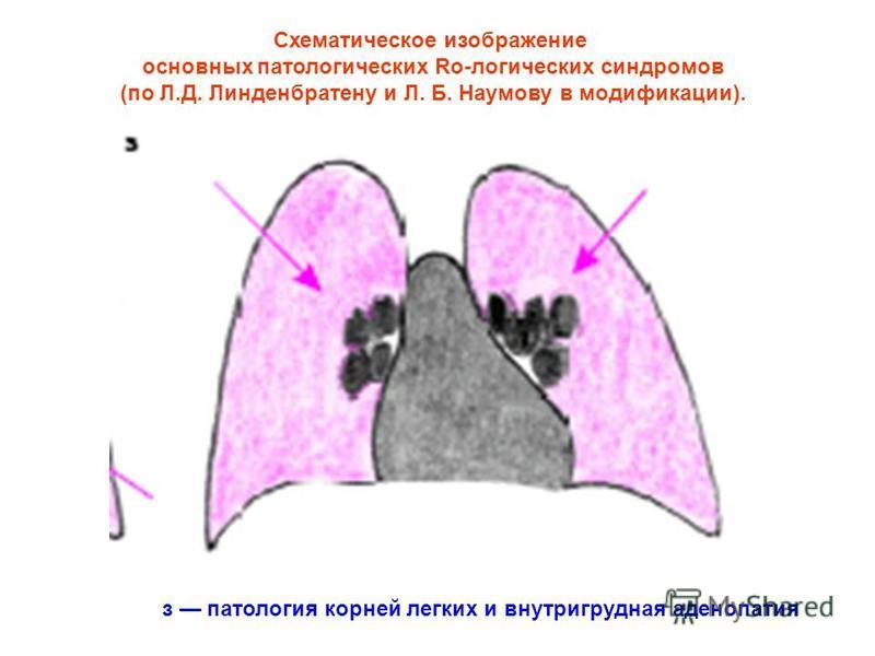 Схематическое изображение основных патологических Ro-логических синдромов (по Л.Д. Линденбратену и Л. Б. Наумову в модификации). з патология корней легких и внутригрудная аденопатия