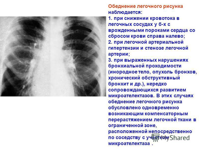 Обеднение легочного рисунка наблюдается: 1. при снижении кровотока в легочных сосудах у б-х с врожденными пороками сердца со сбросом крови справа налево; 2. при легочной артериальной гипертензии и стенозе легочной артерии; 3. при выраженных нарушения