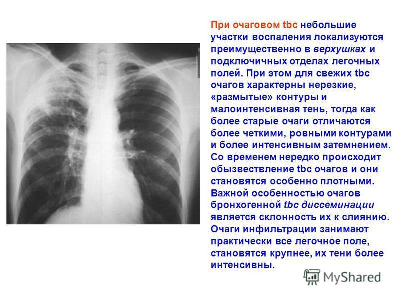 При очаговом tbc небольшие участки воспаления локализуются преимущественно в верхушках и подключичных отделах легочных полей. При этом для свежих tbc очагов характерны нерезкие, «размытые» контуры и малоинтенсивная тень, тогда как более старые очаги