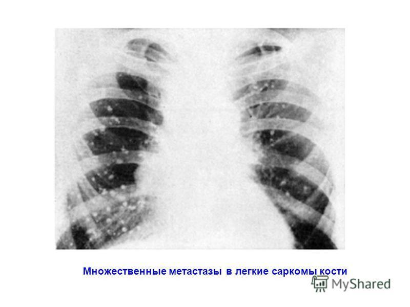 Множественные метастазы в легкие саркомы кости