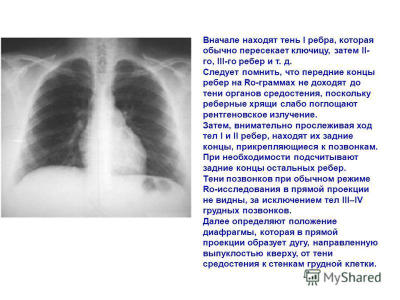 Вначале находят тень I ребра, которая обычно пересекает ключицу, затем II- го, III-го ребер и т. д. Следует помнить, что передние концы ребер на Ro-граммах не доходят до тени органов средостения, поскольку реберные хрящи слабо поглощают рентгеновское