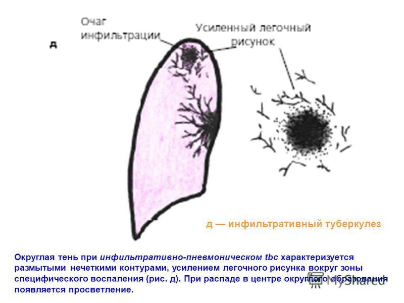 Округлая тень при инфильтративно-пневмоническом tbc характеризуется размытыми нечеткими контурами, усилением легочного рисунка вокруг зоны специфического воспаления (рис. д). При распаде в центре округлого образования появляется просветление. д инфил