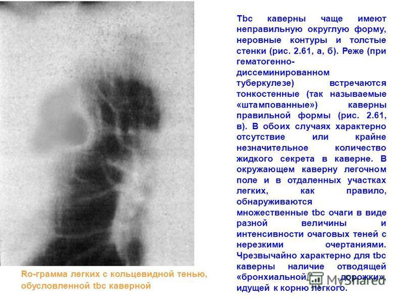 Tbc каверны чаще имеют неправильную округлую форму, неровные контуры и толстые стенки (рис. 2.61, а, б). Реже (при гематогенно- диссеминированном туберкулезе) встречаются тонкостенные (так называемые «штампованные») каверны правильной формы (рис. 2.6
