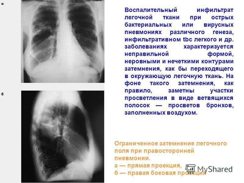 Воспалительный инфильтрат легочной ткани при острых бактериальных или вирусных пневмониях различного генеза, инфильтративном tbc легкого и др. заболеваниях характеризуется неправильной формой, неровными и нечеткими контурами затемнения, как бы перехо