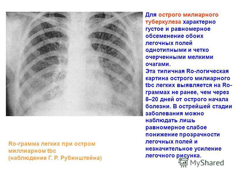 Для острого милиарного туберкулеза характерно густое и равномерное обсеменение обоих легочных полей однотипными и четко очерченными мелкими очагами. Эта типичная Ro-логическая картина острого милиарного tbc легких выявляется на Ro- граммах не ранее,