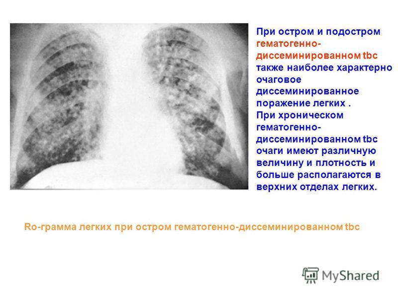 При остром и подостром гематогенно- диссеминированном tbc также наиболее характерно очаговое диссеминированное поражение легких. При хроническом гематогенно- диссеминированном tbc очаги имеют различную величину и плотность и больше располагаются в ве