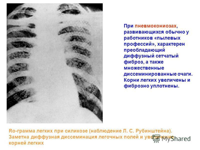При пневмокониозах, развивающихся обычно у работников «пылевых профессий», характерен преобладающий диффузный сетчатый фиброз, а также множественные диссеминированные очаги. Корни легких увеличены и фиброзно уплотнены. Ro-грамма легких при силикозе (