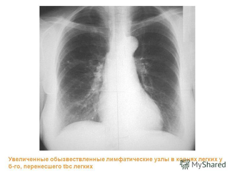 Увеличенные обызвествленные лимфатические узлы в корнях легких у б-го, перенесшего tbc легких