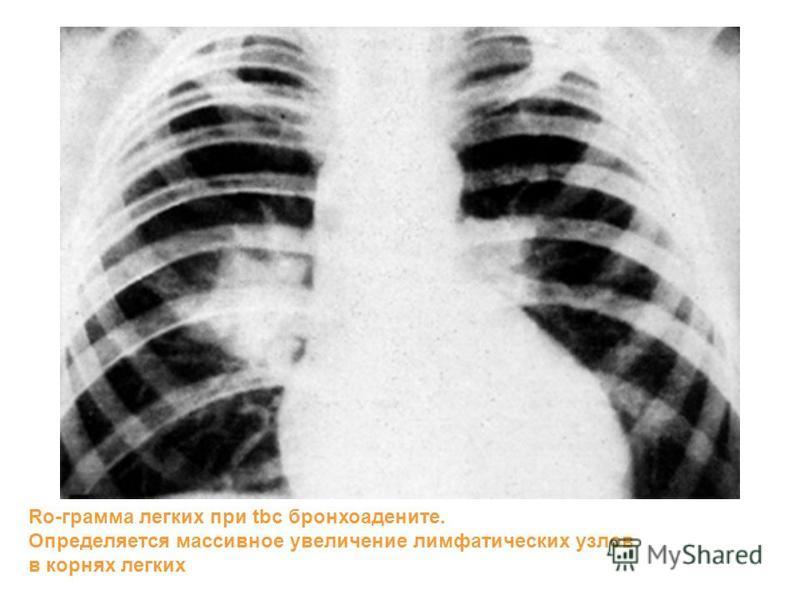 Ro-грамма легких при tbc бронхоадените. Определяется массивное увеличение лимфатических узлов в корнях легких