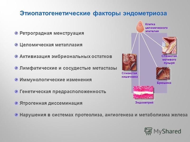 Яичниковый эндометриоз