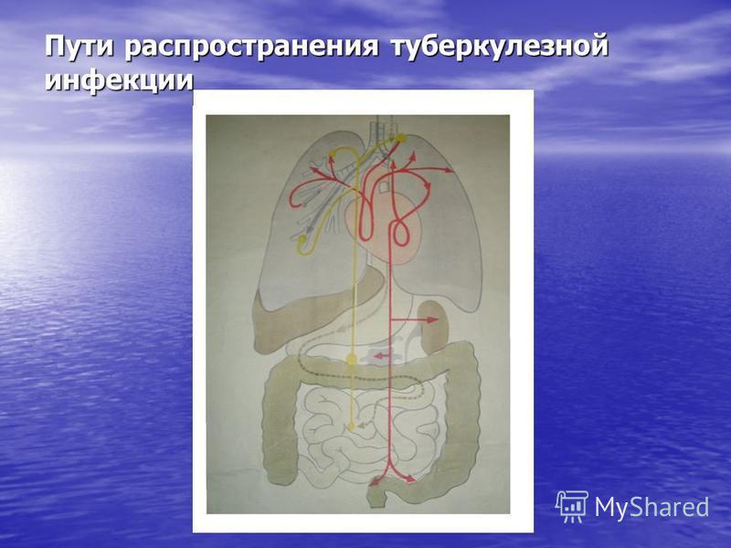 Пути распространения туберкулезной инфекции