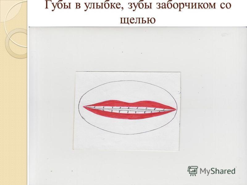 Губы в улыбке, зубы заборчиком со щелью