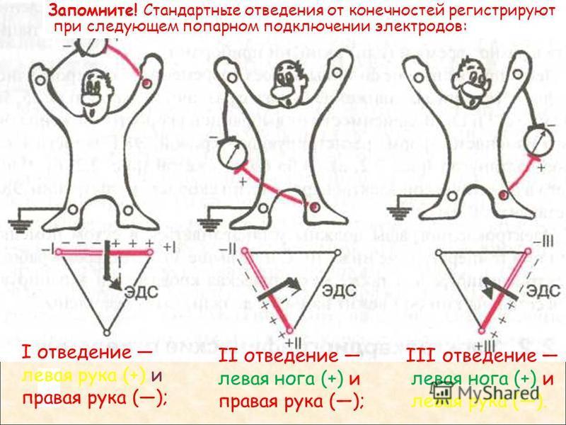 Запомните! Стандартные отведения от конечностей регистрируют при следующем попарном подключении электродов: I отведение левая рука (+) и правая рука (); II отведение левая нога (+) и правая рука (); III отведение левая нога (+) и левая рука ().