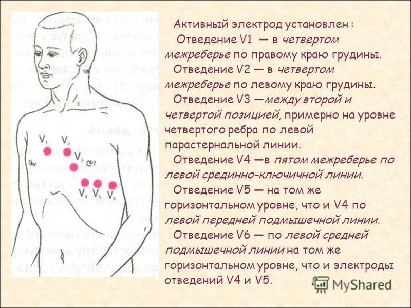 Активный электрод установлен : Отведение V1 в четвертом межреберье по правому краю грудины. Отведение V2 в четвертом межреберье по левому краю грудины. Отведение V3 между второй и четвертой позицией, примерно на уровне четвертого ребра по левой парас