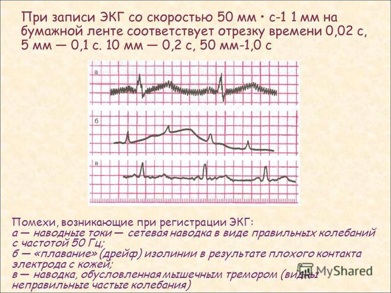 При записи ЭКГ со скоростью 50 мм с-1 1 мм на бумажной ленте соответствует отрезку времени 0,02 с, 5 мм 0,1 с. 10 мм 0,2 с, 50 мм-1,0 с Помехи, возникающие при регистрации ЭКГ: а наводные токи сетевая наводка в виде правильных колебаний с частотой 50